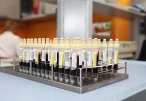 """Излекуваха момиченце от левкемия с """"живо лекарство"""". Това е първият медикамент от този тип, разрешен в САЩ. Здравните власти в САЩ са дали разрешение за употребата на """"живо лекарство"""" срещу детска левкемия. С него е излекувано момиченце, което вече пет години не страда от коварното заболяване. Молекулите на препарата са програмирани така, че да търсят и унищожават целенасочено видоизменените ракови клетки в кръвта. Сайтът на Силвето. Следвай ме - Здраве."""