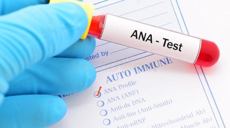 Изследват с тест за автоимунни заболявания в три болници, Следвай ме - Здраве