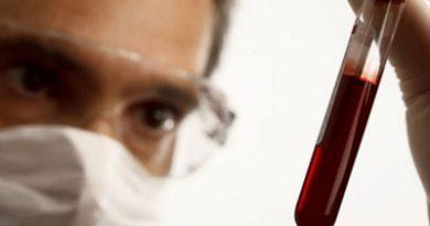 Безплатни изследвания за хепатит В и С, Следвай ме - Здраве