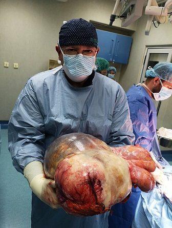 18-килограмов тумор от корема на 50-годишна жена отстраниха специалистите от Клиниката по Ендоскопска, ендокринна хирургия и колопроктология на Военно-медицинска академия, съобщиха от там. Следвай ме - Здраве
