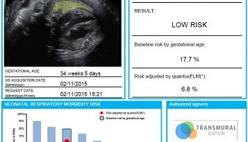 """За първи път в България болница """"Майчин дом"""" въвежда неприлаган досега у нас 100% неинвазивен тест за определяне на белодробна зрялост на плодa при бременности с висок риск от предтерминно раждане. Следвай ме - Здраве"""