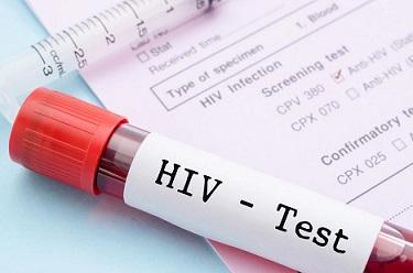 Безплатни изследвания за ХИВ/СПИН в Шумен организира регионалната здравна инспекция, съобщиха от та. Инициативата е по повод 14 февруари – Денят на влюбените. Те ще започнат на 11-ти и ще завършат на 22-ри вкл. Следвай ме - Здраве