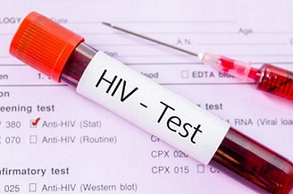 Диагностицирането на ХИВ се бави средно с 4 години Хората, дори да имат рискови контакти, отлагат заради стигмата