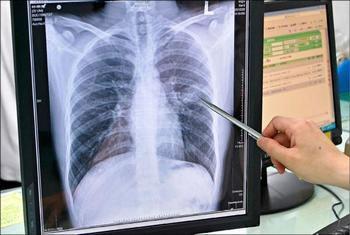 Безплатни прегледи за туберкулоза от в цялата страна Те започнаха на 16-ти и ще продължат до 20-ти септември. Следвай ме - Здраве