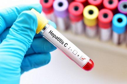 """Безплатно тестване за хепатит С до края на годината Ще се прави в Университетската болница """"Св. Иван Рилски"""" – София. Следвай ме - Здраве"""
