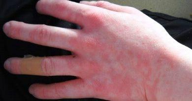 Всеки 10-и пламва от алергия при минусовите температури Заболяването е наследствено, отключва се дори от ледени напитки. Следвай ме - Здраве