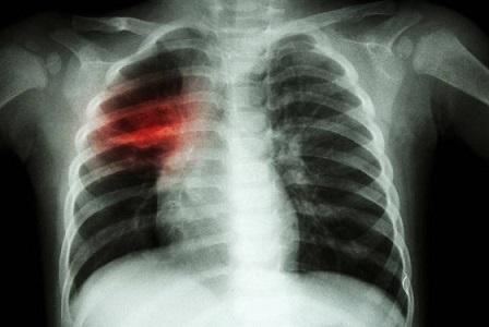 """Трайно намалява броят на болните от туберкулоза в страната Тази година мотото на Световния ден за борба с туберкулозата – 24 март, е: """"Време е!"""" – за свят без туберкулоза! Време е за действие! Следвай ме - Здраве"""