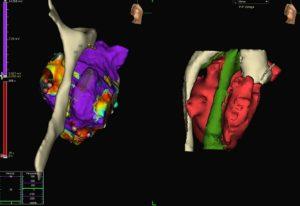 Пациент, опериран от тежък вроден сърдечен порок, бе излекуван от сериозна аритмия в Аджибадем Сити Клиник Болница Токуда. Следвай ме - Здраве