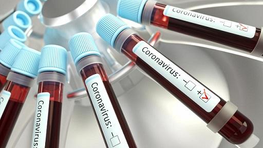 Нови случаи на COVID-19, Следвай ме - Здраве