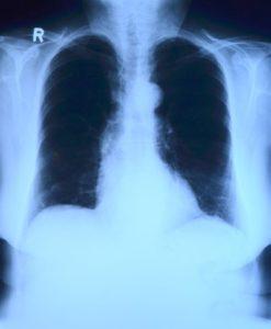 Клетъчна реакция в белите дробове в резултат на COVID-19 Учени обясняват с нея трудното лечение на болестта. Следвай ме - Здраве